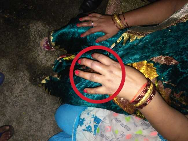 Victim's Mother's Hand got Hurt by the Accused