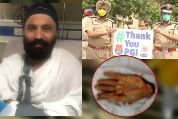 Harjeet Singh hand implanted, Punjab Police Harjeet Singh hand implanted, Punjab Police Sub-Inspector Harjeet Singh gaining Movement in the chopped hand
